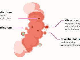 diverticulosis