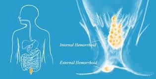 internal and external Hemorrhoids