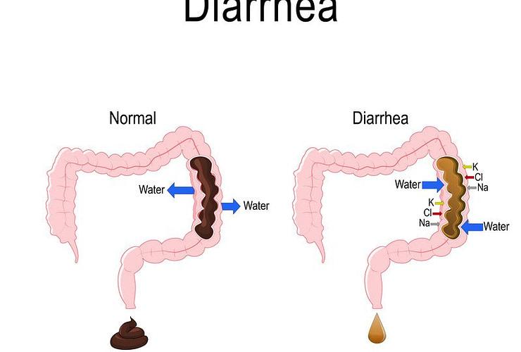 diarrhea 1