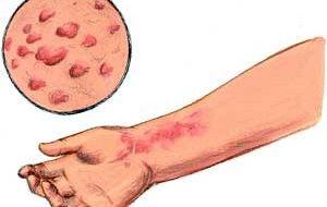 nettle rash